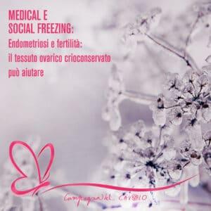 Endometriosi e crioconservazione tessuto ovarico